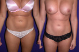 /Liposuction Before/After (1/3)