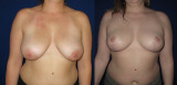 Breast Lift Before/After (1/6)