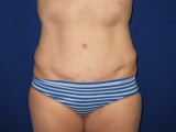 Tummy Tuck Before/After (1/9)